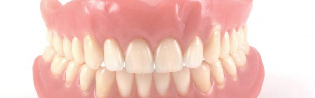 come scegliere la protesi dentale migliore